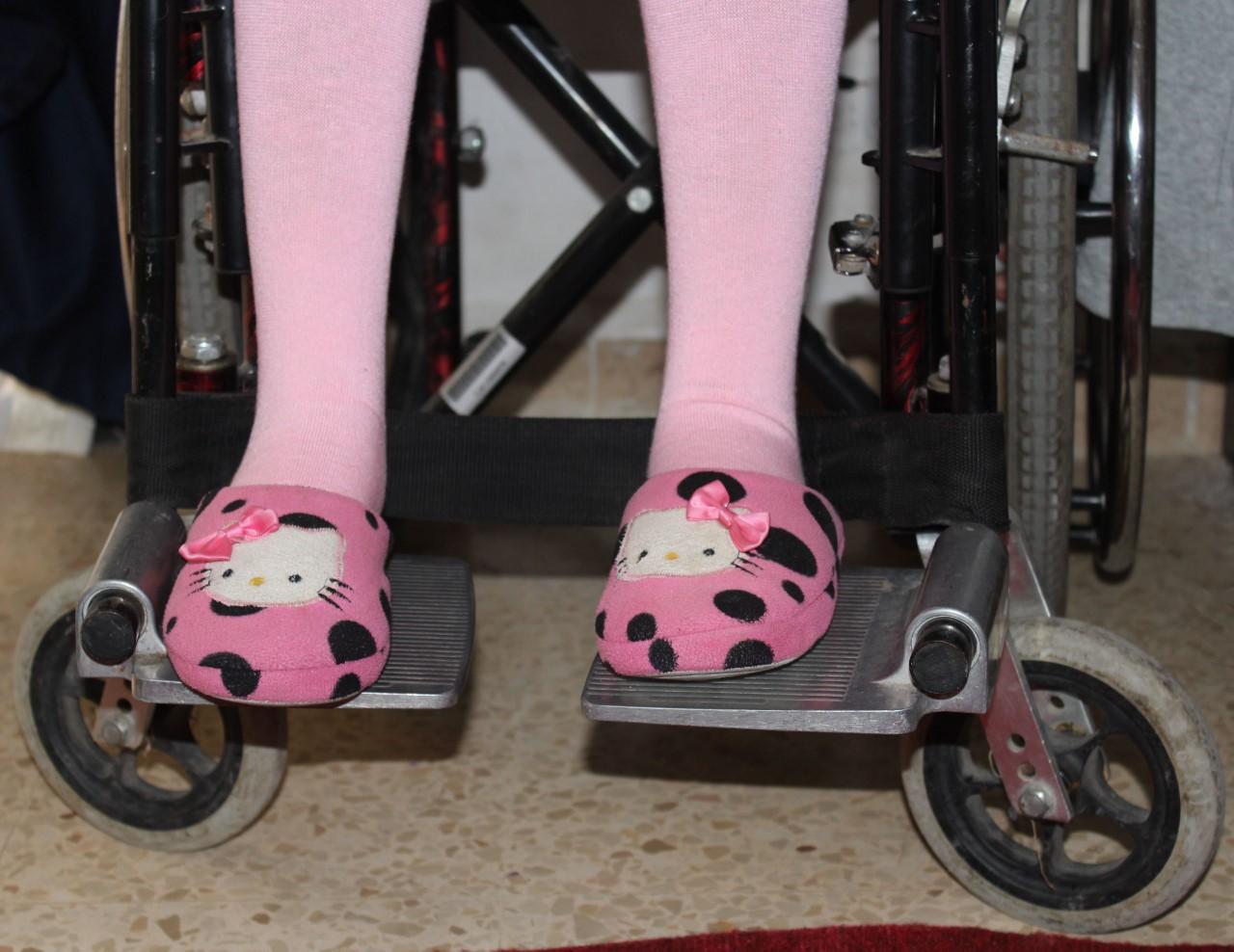 Kuvituskuva, pikkutytön jalat pyörätuolissa